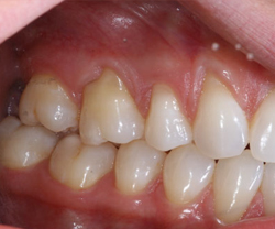 Correction of receding gum level (soft tissue Graft)Before