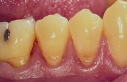 Correction of receding gum level (soft tissue Graft) before 2