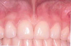Frenectomy before