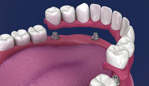 Full Mouth Bridge Dental Implants Moreno Valley