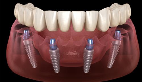 Full Mouth Bridge Dental Implants Riverside