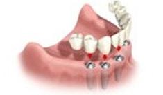 Full Mouth Bridge dental implants Moreno Valley Ca