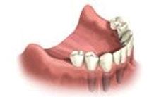 Full Mouth Bridge dental implants Riverside County