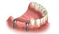 Full Mouth Bridge dental implants riverside ca