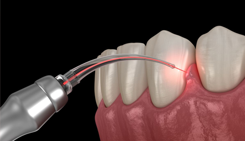 Laser Periodontal Therapy Moreno Valley