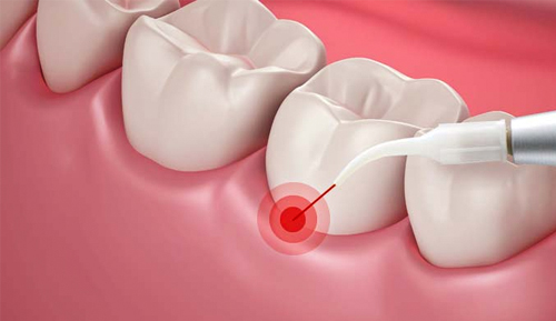 Laser Periodontal Therapy Riverside
