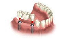 Multiple Dental Implants Course of Treatme Moreno Valley 1