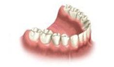 Multiple Dental Implants Course of Treatme Riverside 1
