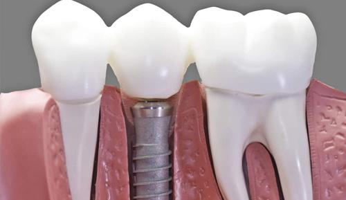 Single Tooth Dental Impants Moreno Valley