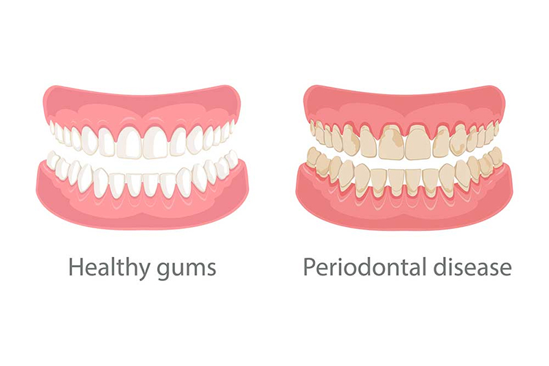 Gum Grafting