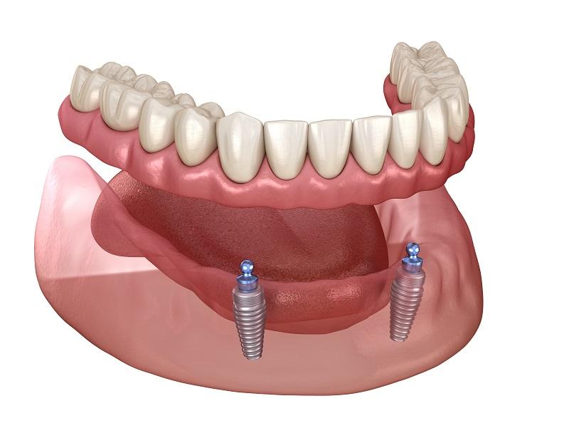 Implant Overdenture Riverside