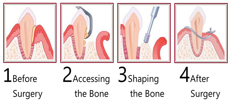Osseous Surgery 2